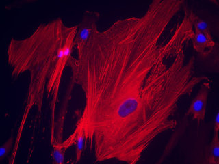 PASMC - Human Pulmonary Artery Smooth Muscle Cells